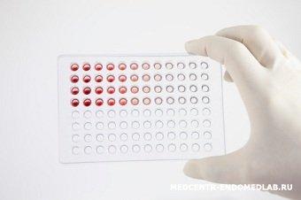 Гормональное исследование: С-пептид