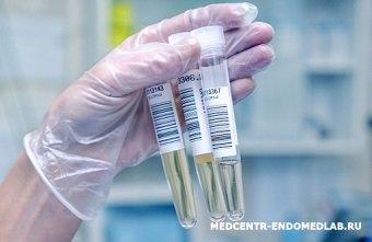 Анализ мочи на метаболиты катехоламинов подготовка Справка от фтизиатра Технопарк