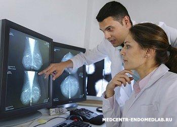 Мазок на раковые клетки гинекология — Мой гинеколог