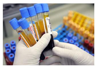 Срочно сдать анализ крови в москве медицинская справка для уфмс спб